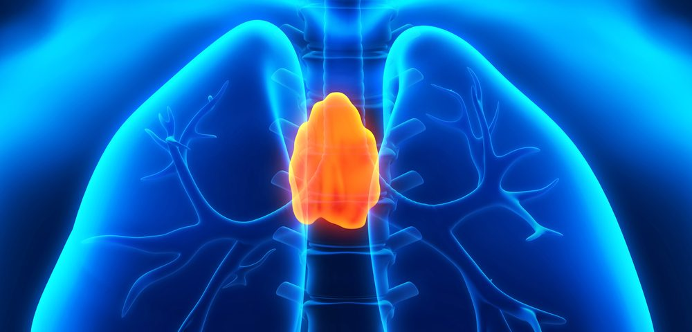 Women with Myasthenia Gravis Have Poorer Quality of Life, But Thymus Removal Helps, Study Says