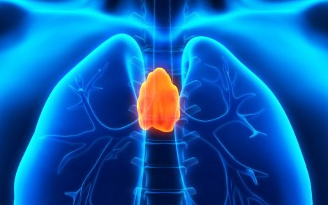 Video-Assisted Thoracic Surgery Safe and Effective Method for Thymoma Removal, Study Finds